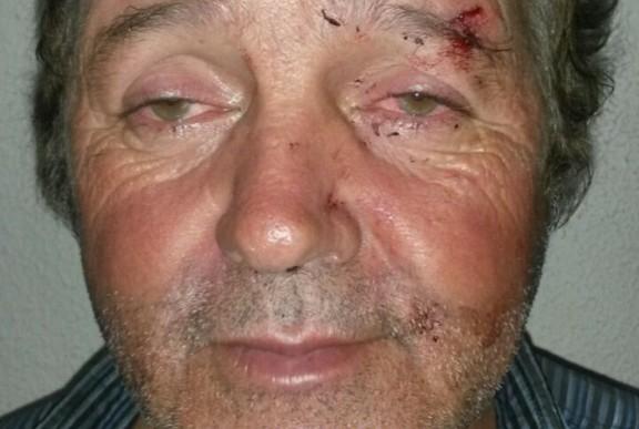 POLÍCIA MILITAR PRENDE ACUSADO DE ESFAQUEAR O PRÓPRIO IRMÃO NA VILA SÃO LUIS
